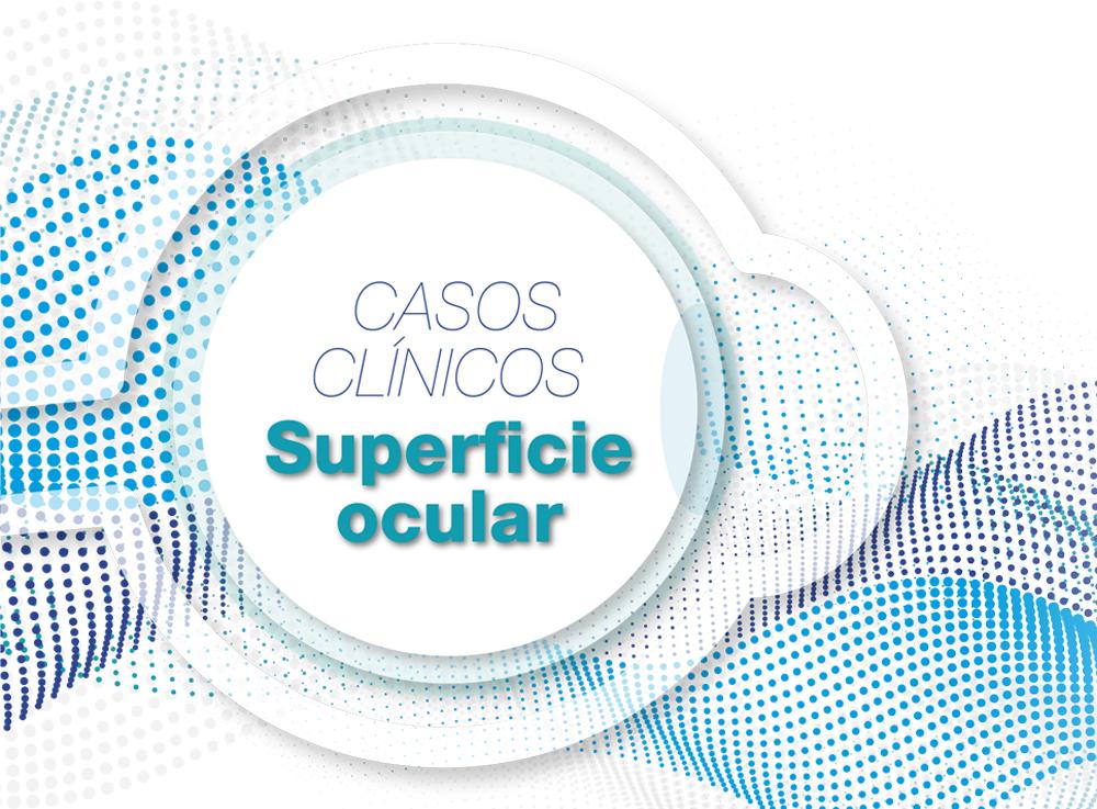 Curso Sesiones Clínicas en superficie ocular